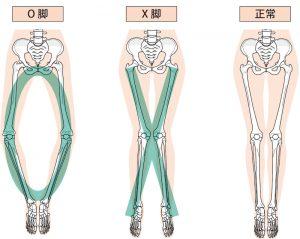 脚変形比較