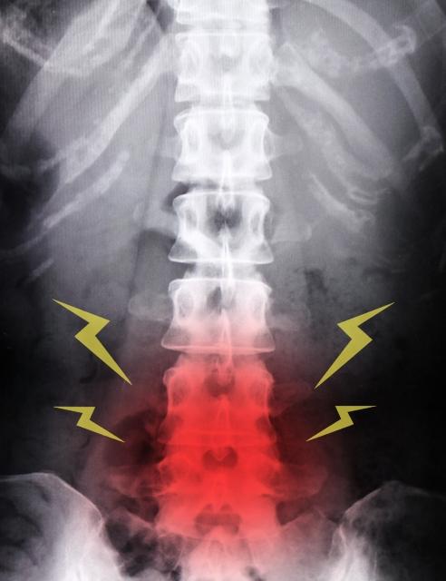 バレリーナのバレエ性腰痛に腰の治療はまず必要ない1